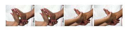 Terapia Física_2003/2007